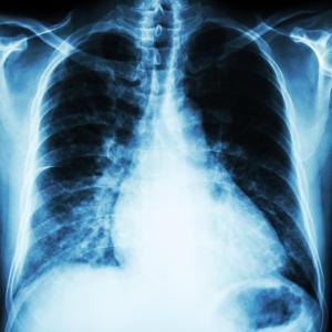 Poor pulmonary function implicated in dementia