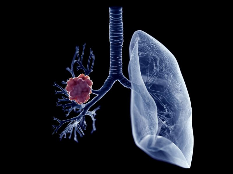 Lung Cancer Not Uncommon After Kidney Transplant Latest News For Doctors Nurses And Pharmacists Oncology
