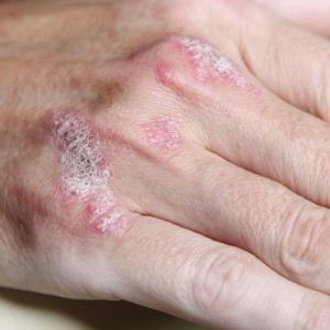 Secukinumab cardioprotective in patients with plaque psoriasis