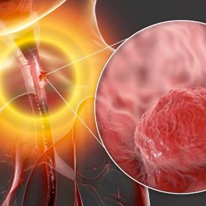 RATIONALE 302: Tislelizumab beats chemo in advanced ESCC