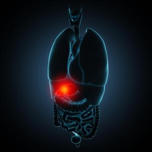 Gallbladder removal tied to increased risk of peptic ulcers