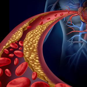 High LDL-C levels up incidence of cardiovascular events after PCI
