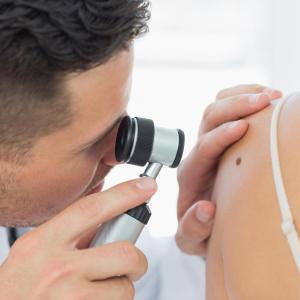 Dermoscopy aids in detecting paediatric melanoma