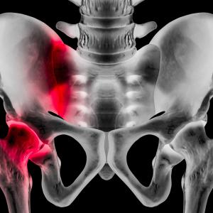 SGLT2 inhibitors do not pose fracture risk