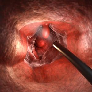 Computer-aided system improves lesion detection rate during colonoscopy