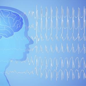 Mortality rate high in patients with comorbid epilepsy and schizophrenia