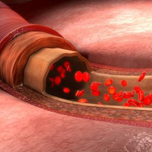 Optimal anticoagulation regimen in AF and CAD 1-year post-PCI undetermined