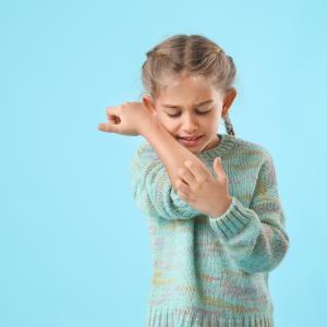 Roflumilast cream eases itch burden, severity in chronic plaque psoriasis