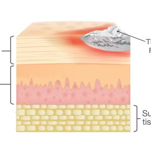 Bimekizumab maintains skin clearance in patients with plaque psoriasis