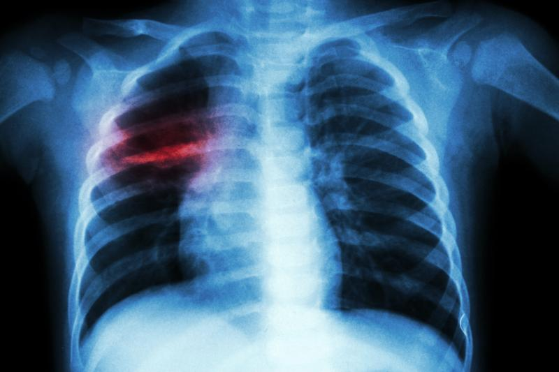 Low serum albumin predicts mortality in pulmonary tuberculosis patients   News for Doctor, Nurse, Pharmacist   Infectious Diseases   MIMS Malaysia