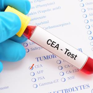 CEA may predict better survival with targeted therapy in BRAF-V600E mCRC