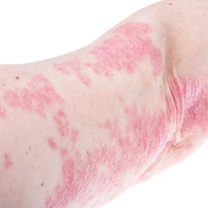 Risankizumab improves skin appearance in patients with plaque psoriasis