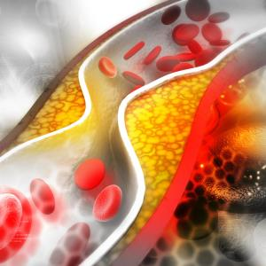 Pooled ORION analysis boosts lipid-lowering potential of inclisiran