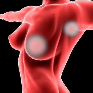 Prophylactic barrier film may protect against post-lumpectomy radiation dermatitis