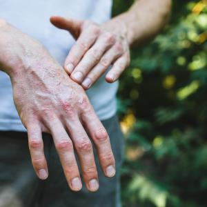 Tildrakizumab shows promise in psoriatic arthritis