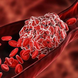 High-dose abelacimab bests enoxaparin for VTE prevention