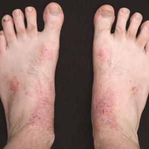 Atopic dermatitis associated with autoimmune diseases