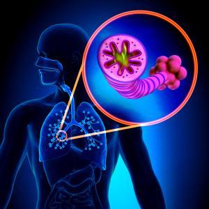 Overlap syndrome linked to pulmonary embolism
