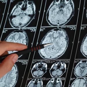Novel tool predicts survival in brain metastasis patients