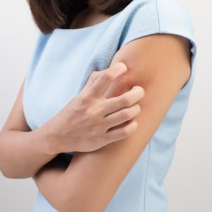 Dupilumab a potential option for moderate-to-severe atopic dermatitis