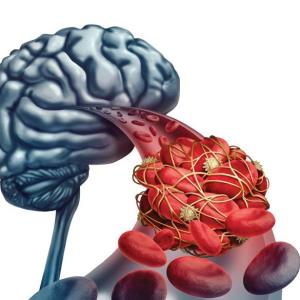 阿利西尤单抗可降低缺血性卒中的风险,但不会增加出血性卒中的风险