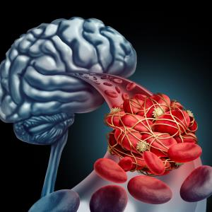 Some stroke patients can still benefit from thrombectomy after 6 hours