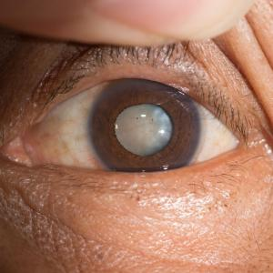 Cataract remains a public health challenge