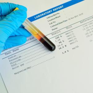 Proactive, reactive desmopressin use effective for safe sodium correction