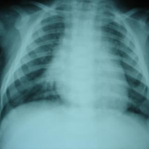 Rapid lung function decline in post-HSCT BOS patients tied to poor survival outcome