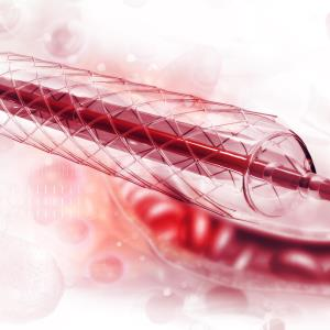 Drug-coated balloon angioplasty may be effective for infrapopliteal disease
