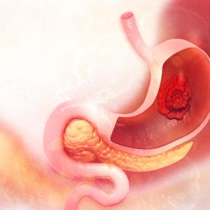 H pylori treatment, vitamin and garlic supplementation may reduce gastric cancer mortality