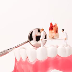 Tooth loss may signify T2D risk