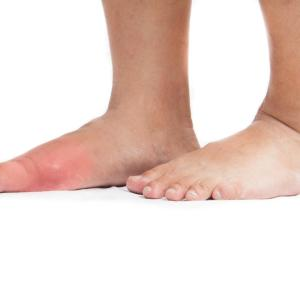 Febuxostat well tolerated in gout patients with fatty liver disease