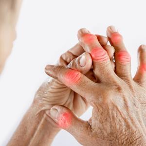COSMOS: Guselkumab improves response rates in active psoriatic arthritis