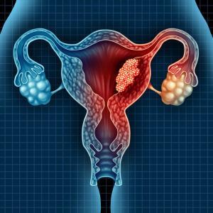 Managing endometrial cancer