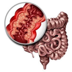 Biosimilar CT-P13 noninferior to infliximab for Crohn's Disease