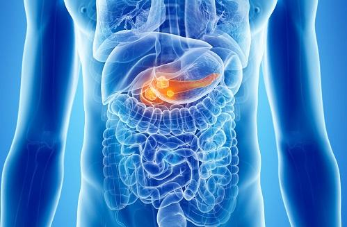 Potential pancreatic cancer target's inhibition may instead