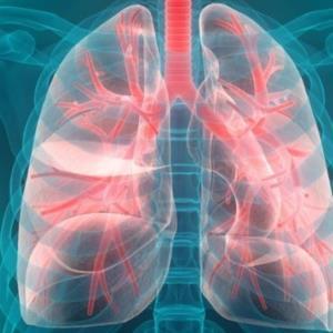 阿奇霉素可减轻罕见肺部疾病的恶化