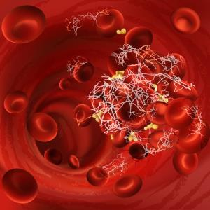 Apixaban may confer survival benefit for COVID-19 inpatients