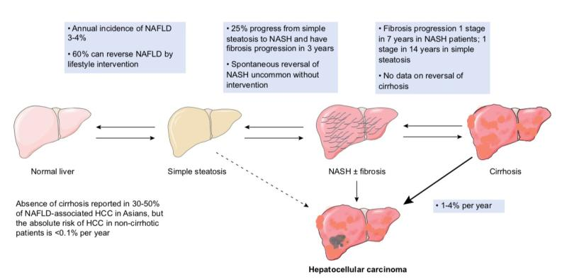 Managing NAFLD in primary care | News for Doctor, Nurse