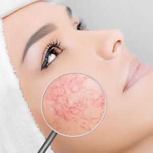 M89 regimen improves skin conditions of rosacea
