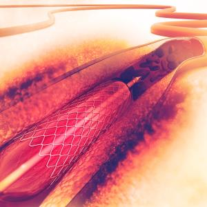 Polymer-free less effective than polymer-based stent for PCI?