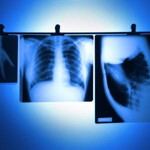 Lung function slightly helps lung cancer prediction in nonsmokers