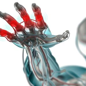 Hydroxychloroquine offers no analgesic benefit for hand osteoarthritis