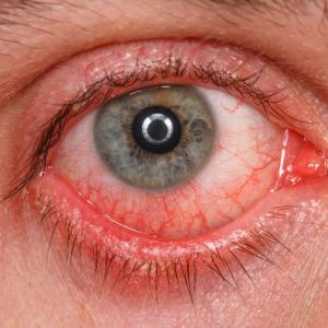 Rose Bengal photodynamic antimicrobial therapy an effective adjunct for progressive keratitis
