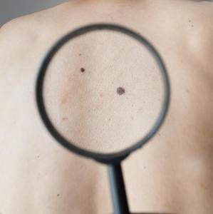 Family history of melanoma ups risk of melanoma, keratinocyte cancers