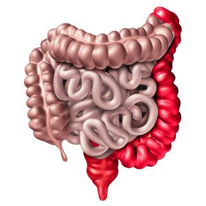 Subcutaneous vedolizumab maintenance attains clinical remission in ulcerative colitis