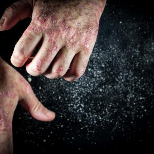 Extension study reflects durable efficacy, safety of tildrakizumab for plaque psoriasis