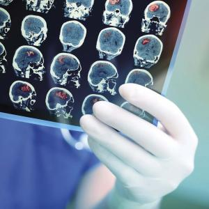 Extended-duration betrixaban reduces stroke risk in acutely ill patients