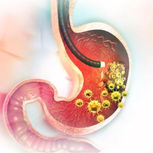 Laparoscopic surgery noninferior to open distal gastrectomy for gastric cancer
